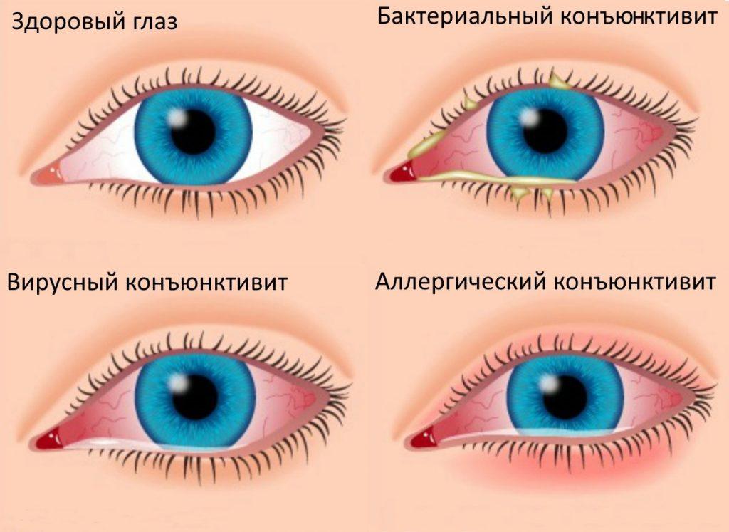 Конъюнктивит красные глаза лечение