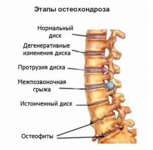 Лечение остеохондроза медикаментами